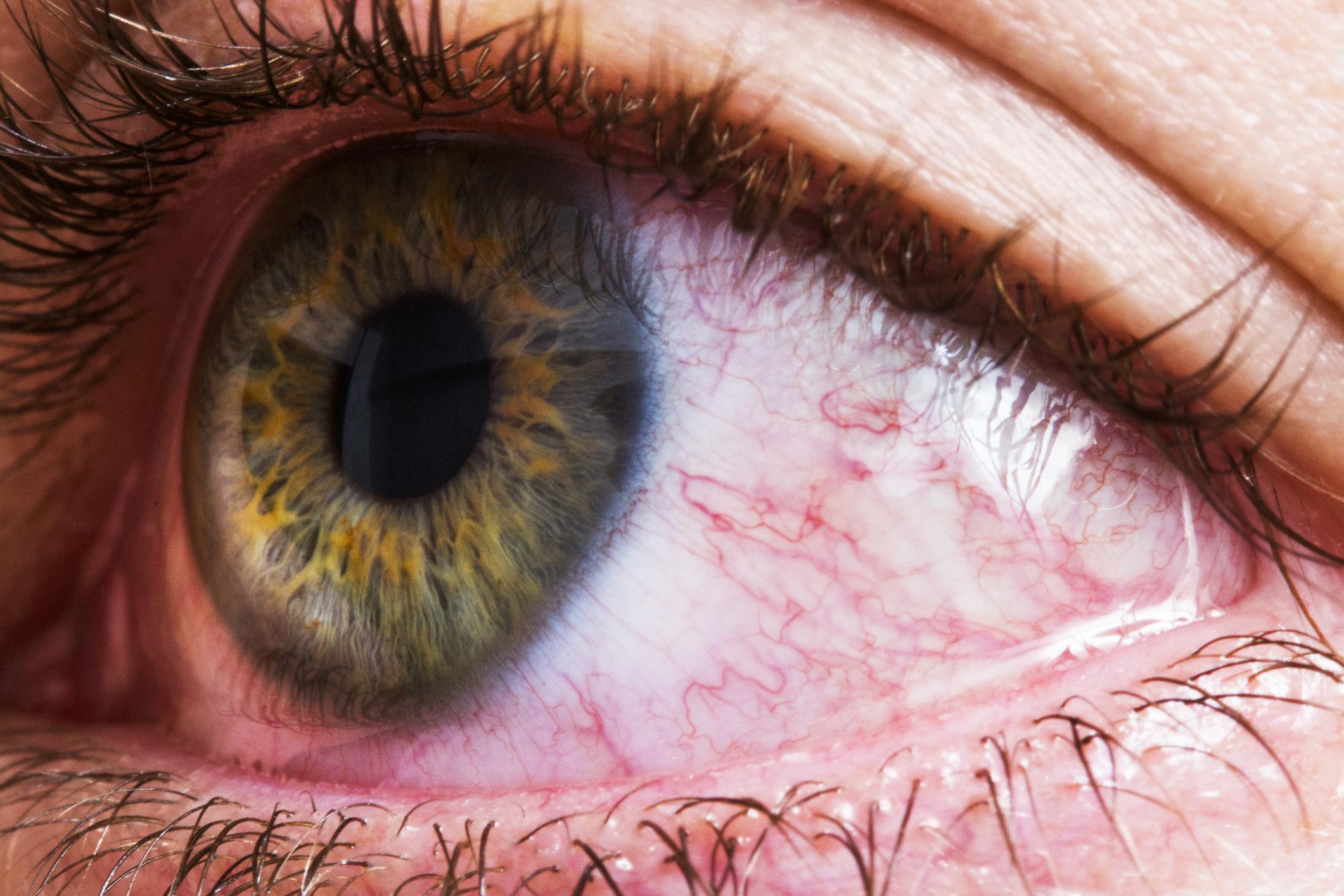 дальнейшем пульсирует картинка в глазах только помощью